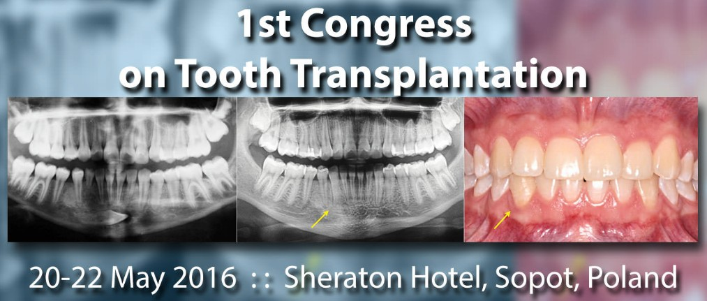 Tooth transplantation congress